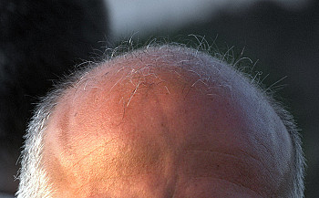 Another reason for us to stop air pollution: Hair Loss